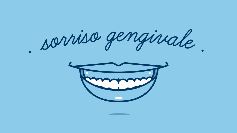 Sorriso Gengivale cause e come si corregge