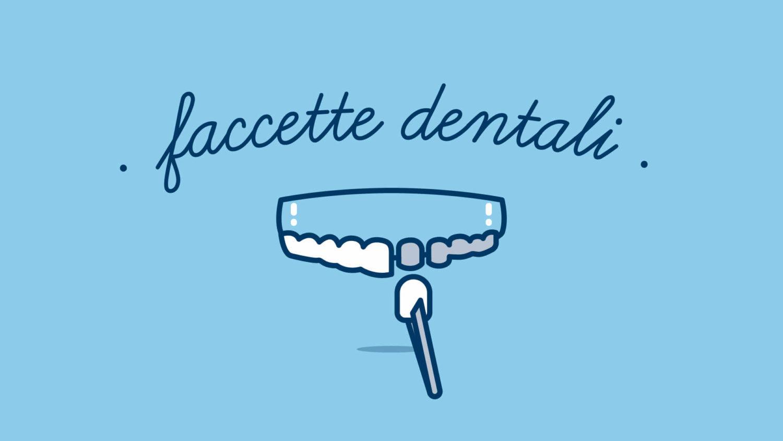 faccette-dentali-cosa-sono-a-cosa-servono
